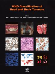 World Health Organization -- Pathology & Genetics: Head and Neck Tumors
